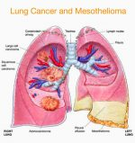 Things You Ought to Know Before Hiring a Mesothelioma Lawyer