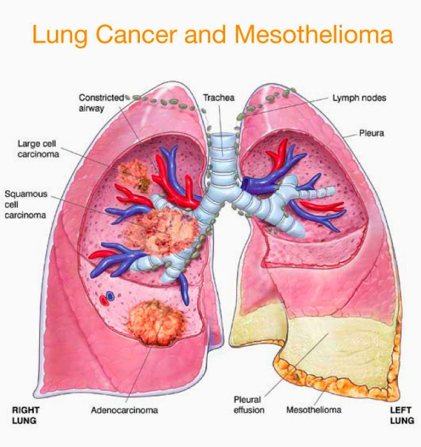 Symptoms Of Pleural Mesothelioma